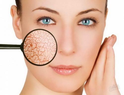 Как ухаживать за сухой кожей лица после 35 лет