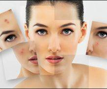 Каким должен быть уход за проблемной кожей лица в домашних условиях