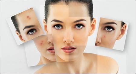 uhod za problemnoj kozhej lica v domashnih uslovijah
