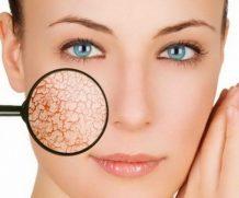 Правильный уход за сухой кожей лица в домашних условиях
